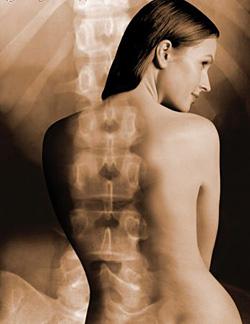 Лечение остеохондроза шейного отдела начните с правильной осанки
