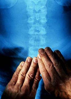 Снимок позвоночника после успешного курса мануальной терапии