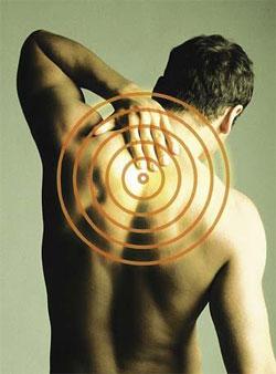 Точки боли при остехондрозу