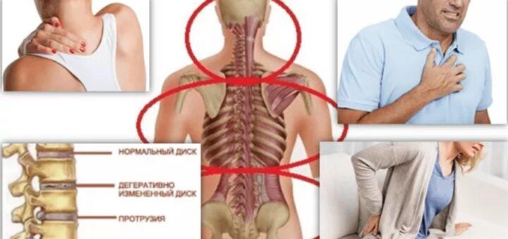 Характерные признаки остеохондроза