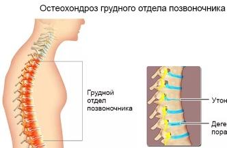 Возникновение боли при остохондрозе