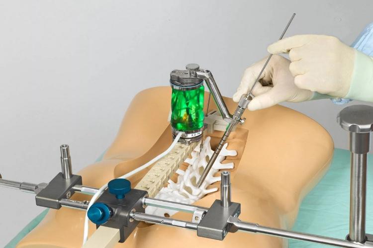 Хирургический метод при лечении остеохондроза позвоночника