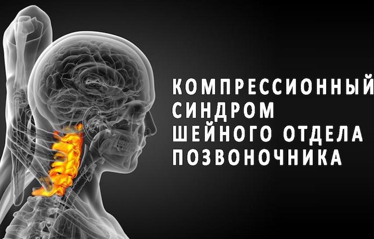 Компрессионный синдром шейного отдела позвоночника