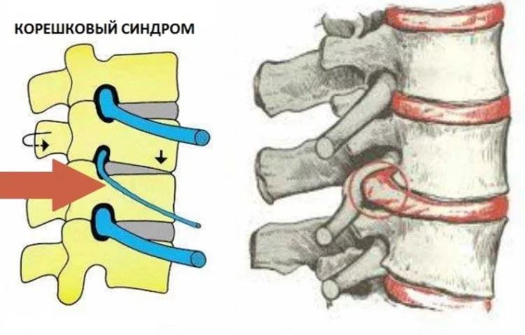 Корешковый синдром при шейном остеохондрозе