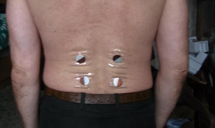 Металлотерапия: использование металлов при сильных болях в спине