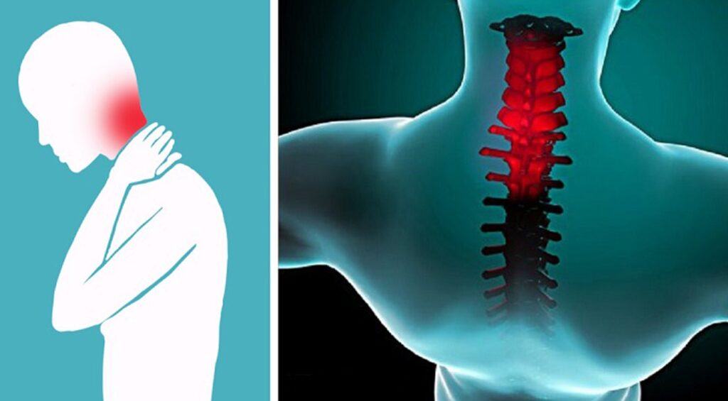 Шейный остеохондроз сопровождается постоянной болью в шее