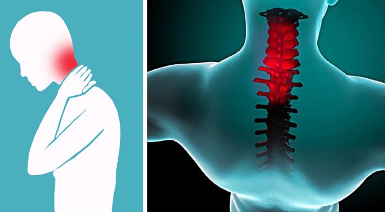 Может ли быть высокое давление при шейном остеохондрозе