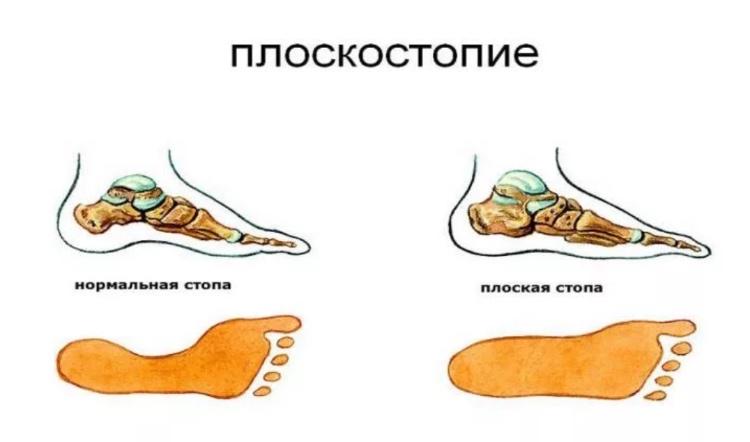 Плоскостопие стопы человека