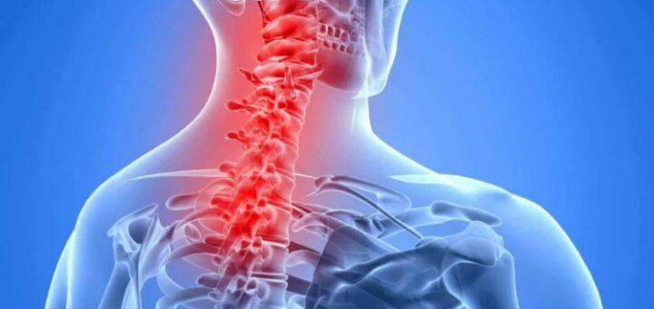 Радикулит шейный явные симптомы, стоит обратиться к врачу