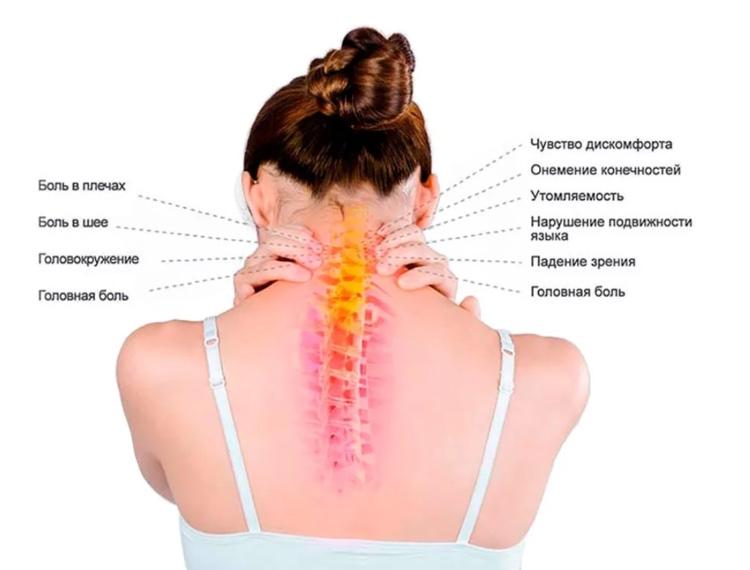 Явные симптомы если у вас остеохондроз шеи