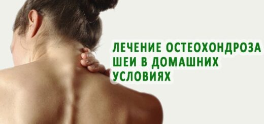 Лечение остеохондроза шейного отдела в домашних условиях