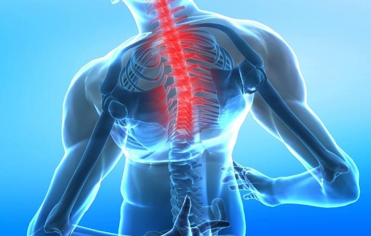 Частые вопросы при приступах шейного остеохондроза