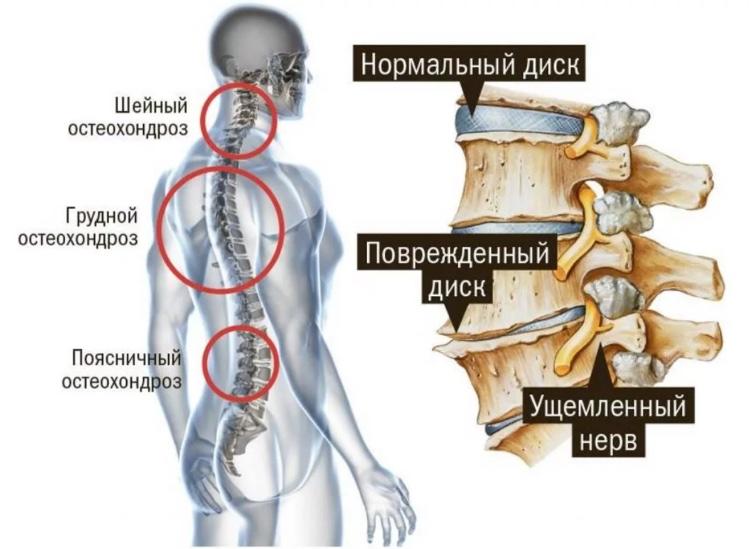 Разновидности остеохондроза у человека ведущего малоподвижный образ жизни