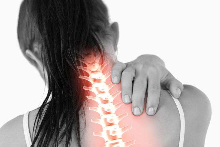 Рецидивирующий остеохондроз в шейной части