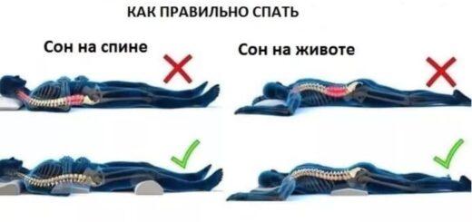 Как правильно лежать при остеохондрозе во время сна