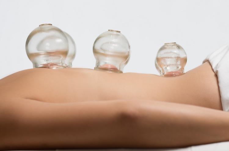 Баночный массаж при болях в спине