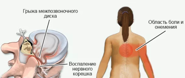 Грыжа межпозвоночного диска в грудном отделе