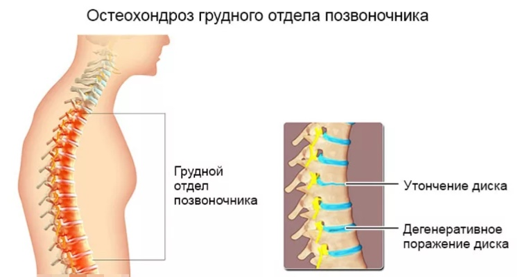 Остеохондроз грудного отдела позвоночника, дегеративное поражение