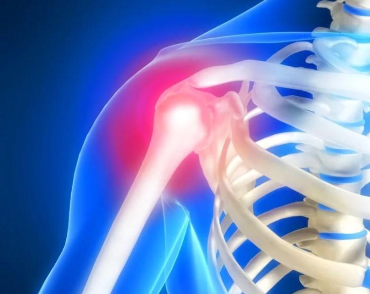 Постоянный ноющие боли в плечевом суставе.