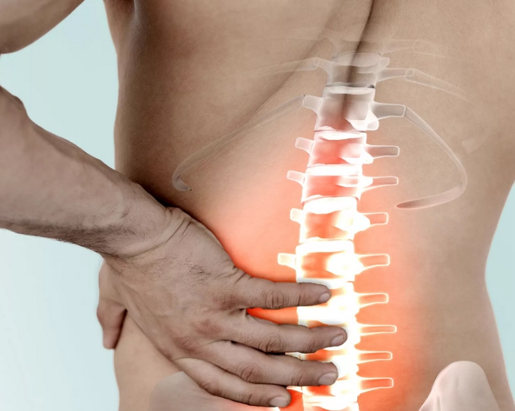 Сдавливание корешков спинного мозга.