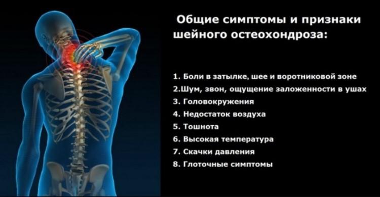 Общие признаки и симптомы при болях в шее и спине