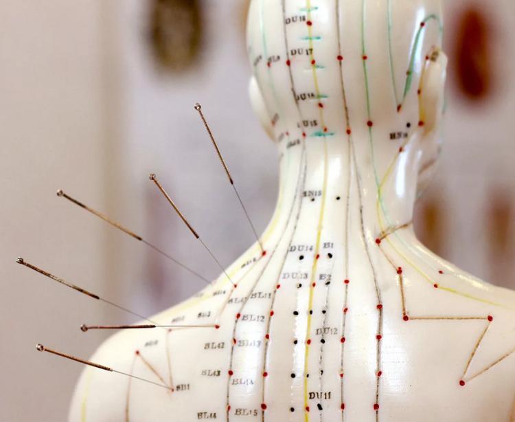 воздействие на биологически активные точки при остеохондрозе.