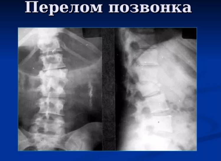 Рентгеновский снимок при компрессионном переломе