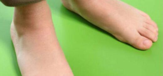 Вальгусная деформация столы или по другому плоскостопие