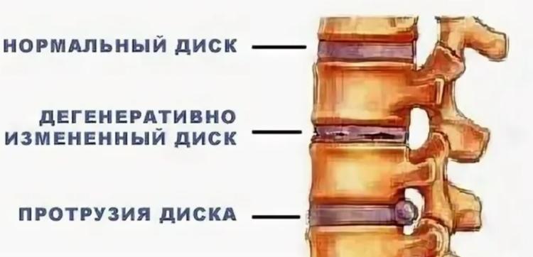 Сравнение межпозвоночных дисков в разных стадиях.