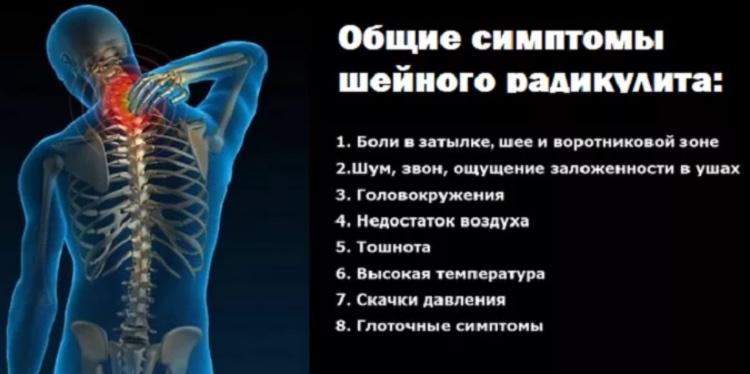 Общие симптомы шейного радикулита